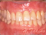 歯周病とインプラント症例のイメージ